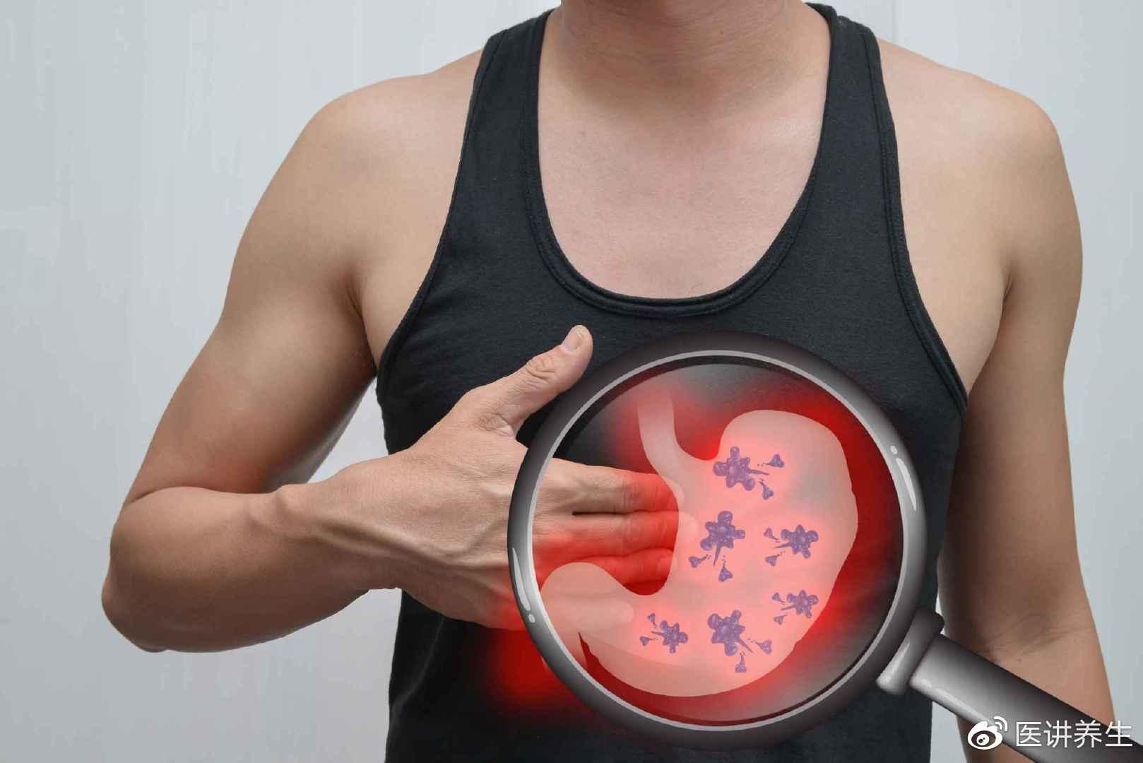 谁来管管胃癌?医生提醒:四种食物平时多吃点,胃病来得少一点