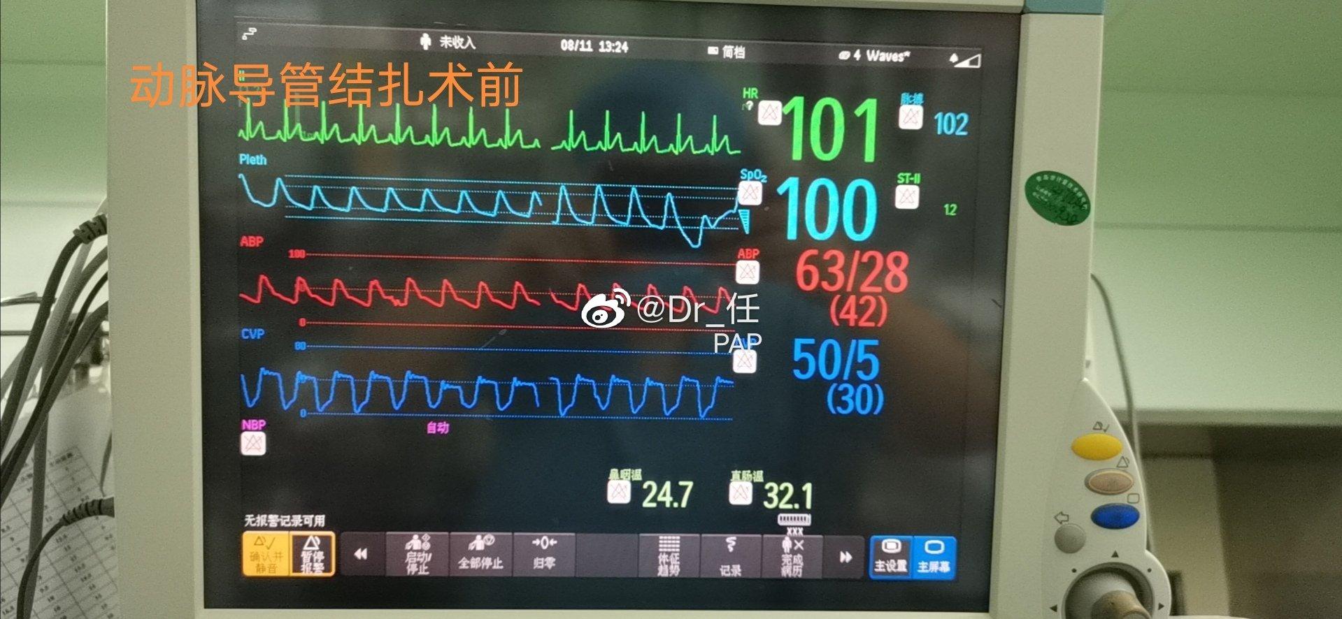6月,粗大动脉导管未闭,重度肺动脉高压,左右室均增大,严重心衰