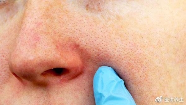 鼻子两旁挤出的白色条状物,是什么?越挤越频繁,是螨虫太多了吗