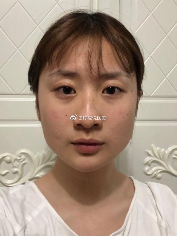做完下颌角五个多月了,脸型的变化是真的大,要问我痛不痛