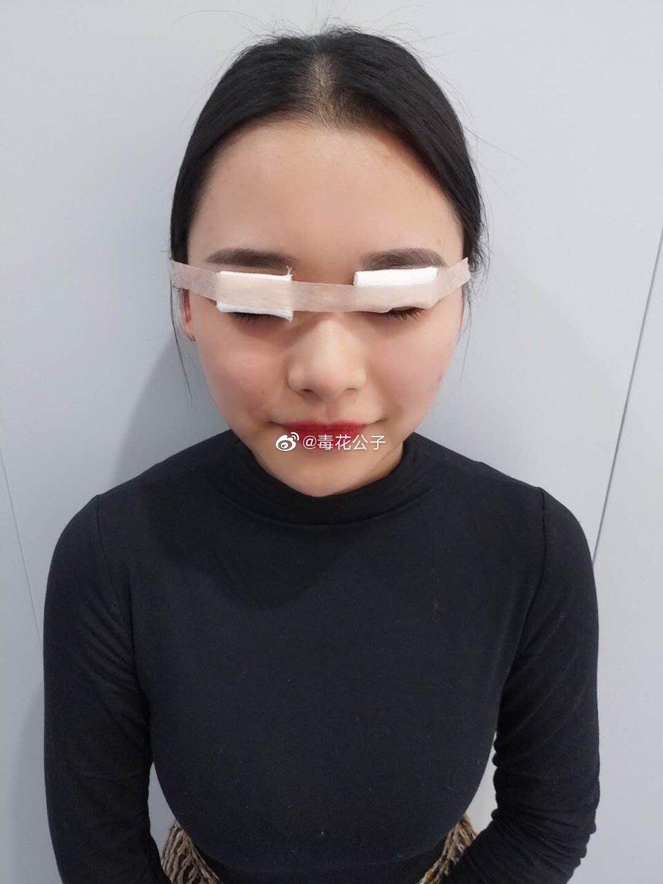 珠海全切双眼皮投稿:一直内双的我可以说是非常渴望一双大眼睛了
