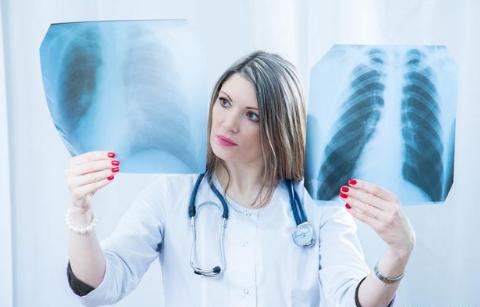 痛心!肺癌发现多是晚期,这6个早期症状太多人忽视了