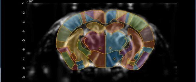突破!自由活动动物深部功能性脑成像的新方法