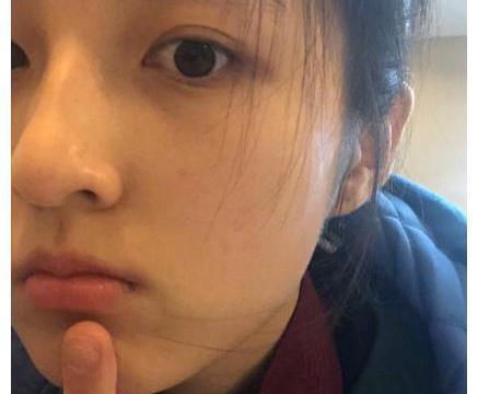 张子枫自拍不爱开美颜,怼脸拍的这张照片,皮肤状态过于真实