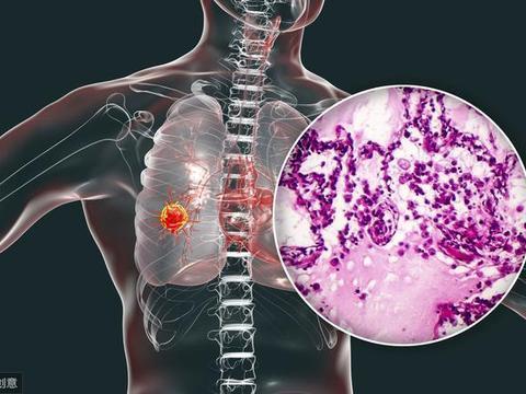 """肺癌""""侵袭"""",不止与吸烟有关,还有这3类疾病因素,时常被忽略"""