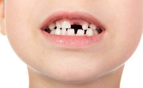 3种类型的「牙髓炎」,照这3个方法治疗,让你拥有健康口腔!
