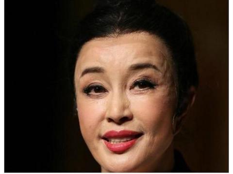 """被玻尿酸毁了的女星,王心凌像老太太,而她""""丑到""""不可接受!"""