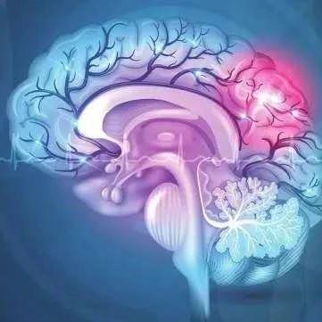 年轻小伙脑出血,春天要警惕脑血管病