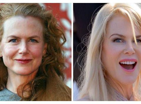 整容医生预测8位女星50岁的样子,图2是妮可·基德曼32和50岁对比