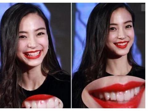 女星最想删掉的照片:杨颖口红粘牙,关晓彤脱粉现场,图4笑了