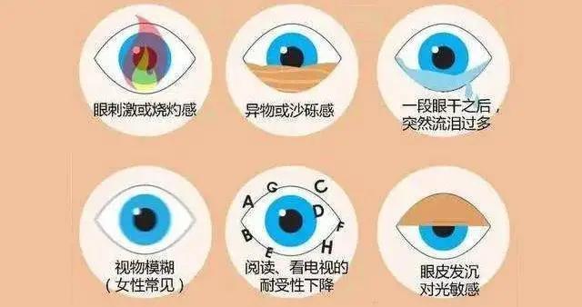 """眼干必须点眼药水吗?错!济宁眼科专家给你""""自救""""秘籍"""