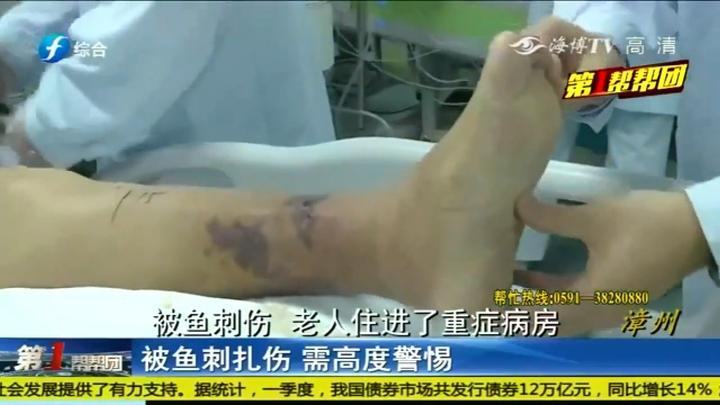小伤别忽视!漳州阿婆被鱼刺伤变成败血症,医生:死亡率达75%