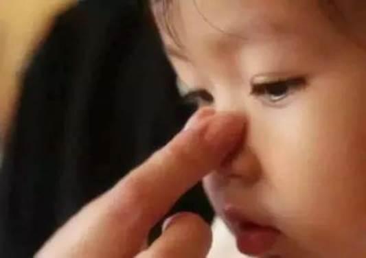 为让女儿鼻梁变挺,宝妈用尽手段,医生:整容医生都不敢这么做