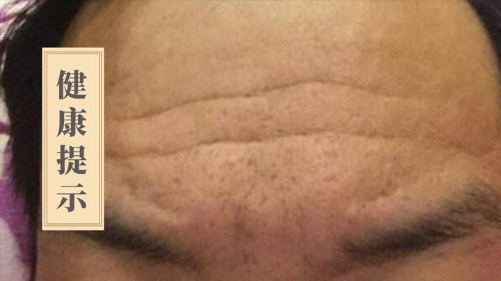 额头上的皱纹走向,带给你不同的健康提示!快看看你的是哪种