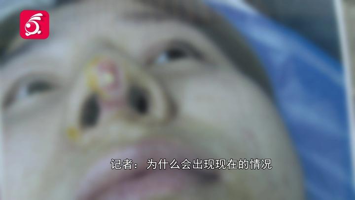 两名女子隆鼻,一个呼吸不畅、一个假体顶出来!医院:类似的挺多