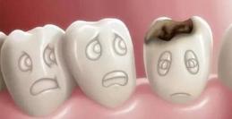 宝宝换牙期要注意些什么