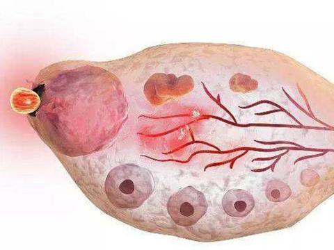 冻卵,让女性孕育生命的能力受到年纪的阻碍越来越小