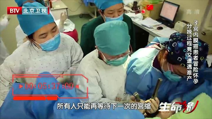 子宫内膜癌患者难产,医生用产钳助产,看到钳子我都心揪|生命缘