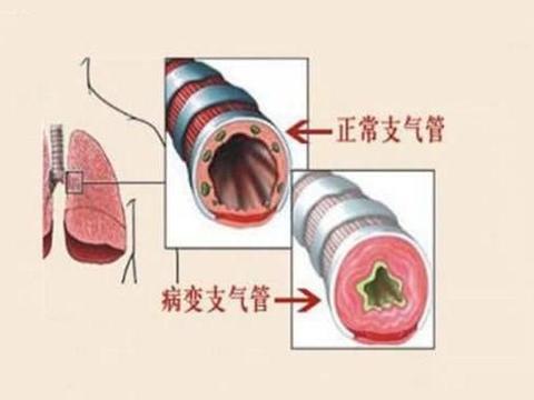 """人体有个""""祛痰穴"""",专克支气管炎,祛痰止咳,呼吸越来越通畅"""