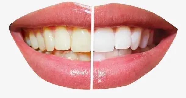"""牙太黄,这些""""网红""""方法管用吗?"""