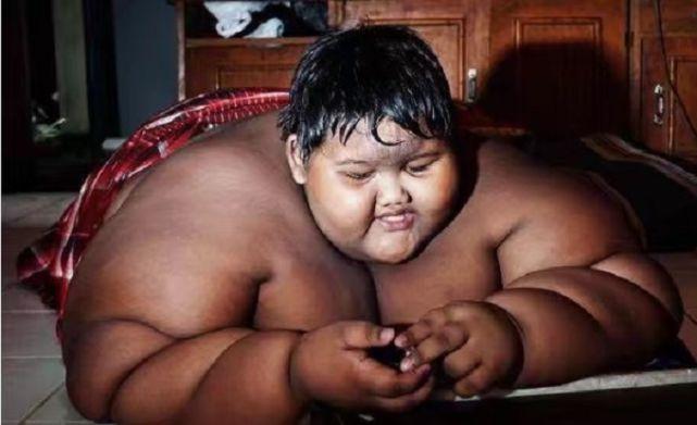 8岁重达200公斤,现如今5年过去了,那位印尼男孩怎么样了?