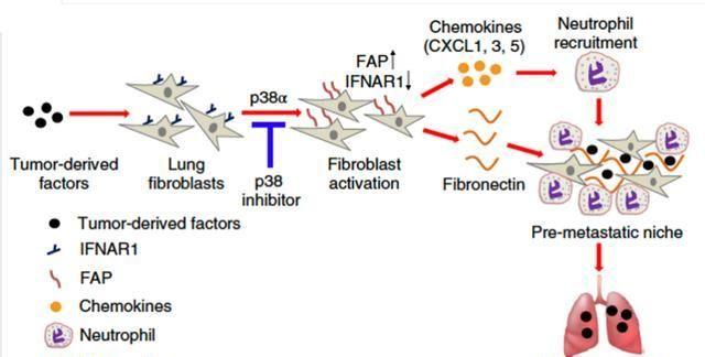宾夕法尼亚大学发现:细胞因子促进肿瘤转移到肺部的原因