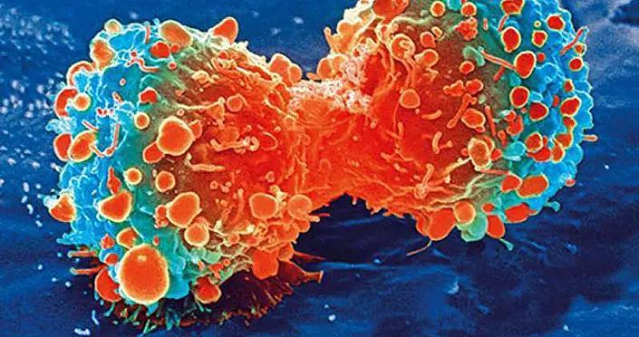 俄原子能集团学者设想出能够治疗各种癌症的万能加速器
