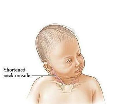 宝宝的脖子总是往一侧歪,可能是婴儿斜颈,越早治疗越好纠正