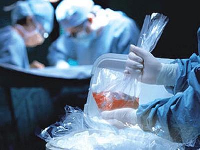 美国加州一女婴曾接受猩猩心脏移植,最后怎样了?