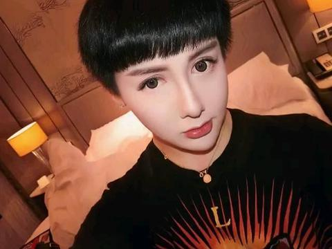 蛇精男刘梓晨融掉全脸玻尿酸,模样大变,网友:终于像个人了