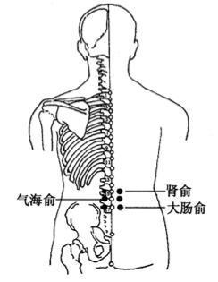 灸法医案赏析——蕲艾灸为主,治疗慢性腹泻