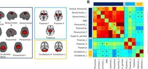 Brain:急性缺血性脑卒中大脑运动网络的瞬态变化