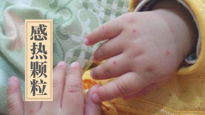 孩子感冒发热、手足口病、急性喉炎,中医1个特效方就能搞定!