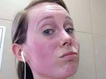 皮肤过敏角质层薄红肿痒胀痛发热怎么办?