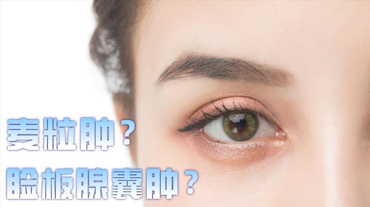 """长""""针眼""""就是麦粒肿?错了,疼或不疼的""""针眼""""是两种疾病"""