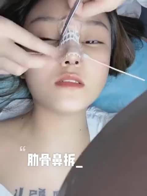 分享:肋软骨隆鼻术后拆鼻夹板 问题1:很多人会担心取了肋软骨会