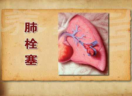 老父因抢救时剪衣服要求索赔,哪知急性肺栓塞这个病多凶险?