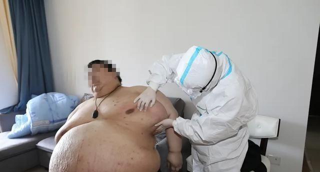 """疫情期间增加200斤,医疗保险亡556斤武汉""""第一胖"""""""