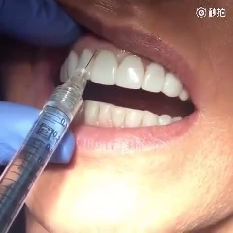 国外用玻尿酸来填充掩饰牙齿黑三角