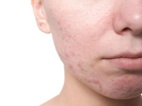 痘坑和痘印有什么区别吗?学会4招轻松去痘,让你拥有健康肌肤