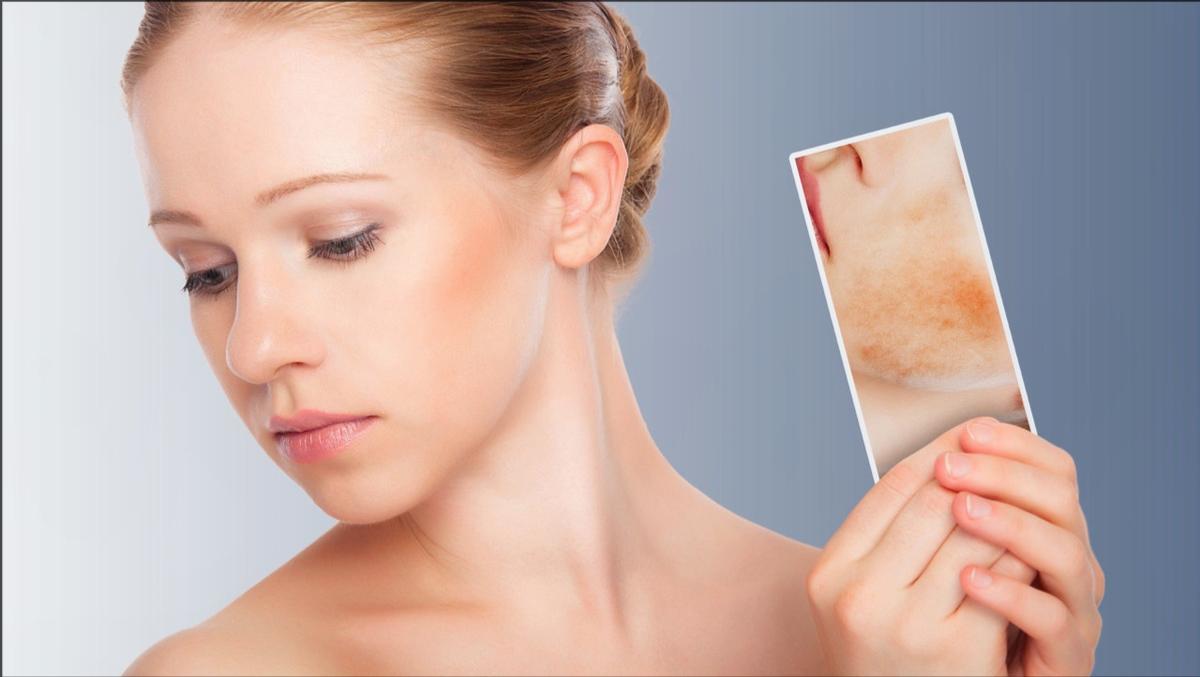 皮炎、湿疹、皮肤瘙痒用皮炎平有效吗?医生解答皮炎平的作用功效