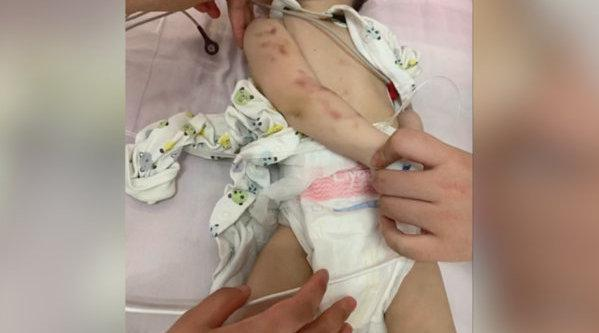 成都1岁婴儿疑遭父母虐待进ICU,警方介入