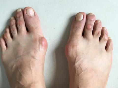 """足底行走痛 原来是""""大脚骨""""惹的祸"""
