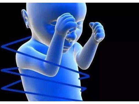 胎儿脐带绕颈,对宝宝成长影响很大,孕妈妈一定要少做这些事