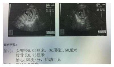 孕期不同阶段B超单信息,关乎胎儿健康,你都知道吗?