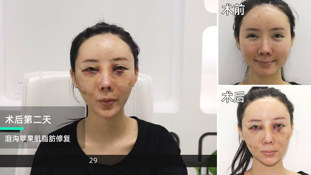 手术项目:泪沟+苹果肌脂肪修复; 昨天与今天分别分享了这个丫头