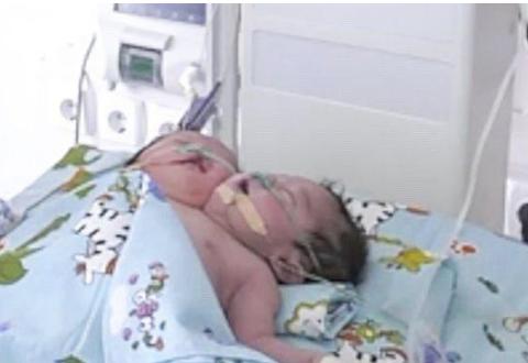 乌兹别克斯坦连体婴出生,一个身体两个头