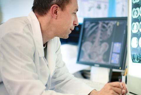 低剂量螺旋CT是筛查肺癌的重要手段,辐射量低