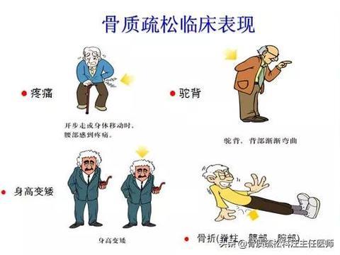 骨质疏松症与骨关节炎