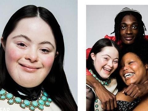 以行动证明美丽无界限:Gucci邀请唐氏综合症少女当模特儿!